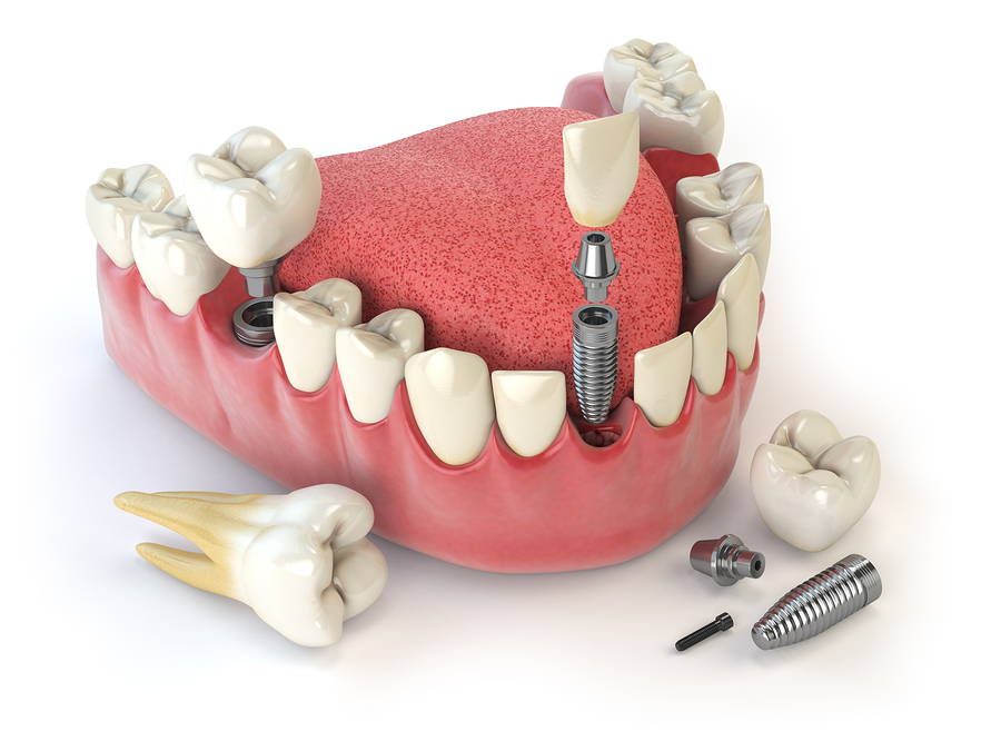Tooth human implant. Dental concept. Human teeth or dentures. 3d