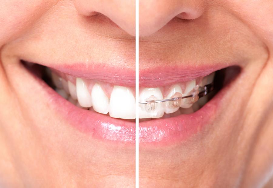 Healthy woman teeth. Dental and orthodontic health care.