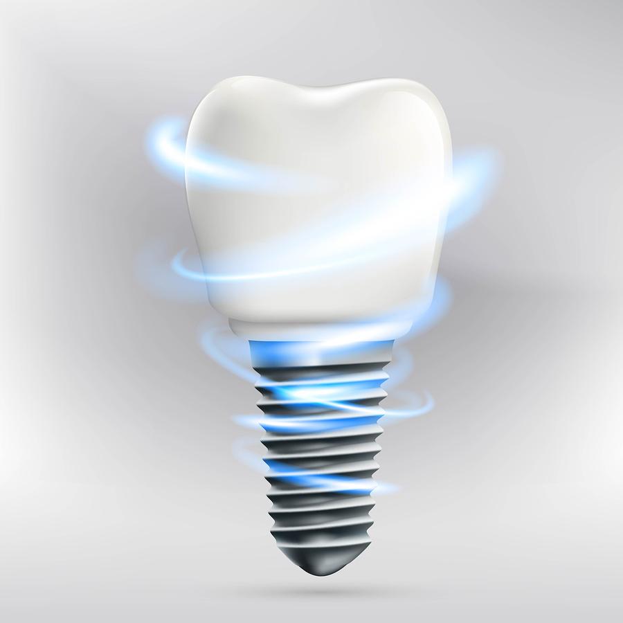 Icon human dental implant. Stock vector illustration.