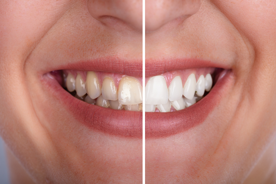 Zoom Tooth Whitening At St Peter S Lodge